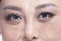 【复制】脾虚眼袋大,肾虚眼袋黑 ! - 周公乐 - xinhua8848 的博客